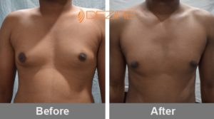 Mens Breast Reduction Surgery In Pune