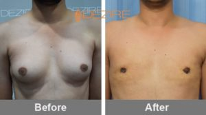 Male Breast Reduction Surgery Before And After In Pune