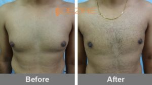 Male Breast Reduction In India dr snehal more vaser gynecomastia-min