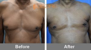 Manohar Bagul Gynecomastia Before And After 15-07-17-min