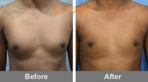 Manthan Dhas Best Doctor For Gynecomastia In Delhi-min