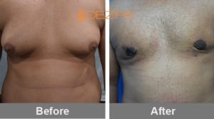 Nilesh Vaja Breast Reduction Surgery Cost In India-min