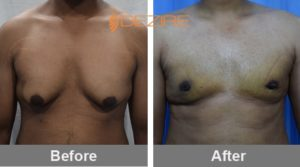 Sagar Gijam Male Chest Reduction Before And After 15-05-17-min
