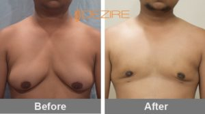 Male Areola Reduction Before And After In Pune
