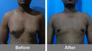 Breast Reduction Male Gynecomastia In Pune