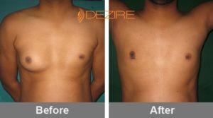 mens breast reduction cost