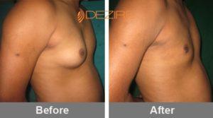 male breast reduction procedure