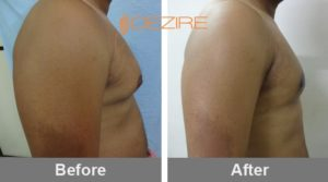 Gyno Surgery Before And After In Pune