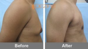 atul Male Areola Reduction Before And After-min