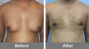 Male Breast Reduction Before After In Pune