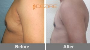 chetan porwal Male Breast Surgery Before And After-min