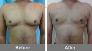 Gynecomastia Correction Surgery-min