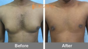 chirnajeevi Affordable Gynecomastia Surgery-min