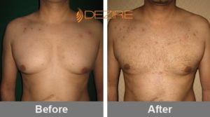 dr fahim manzoor Glandular Gynecomastia Treatment-min