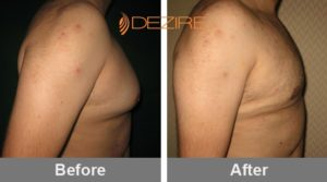 dr fahim manzoor Gynecomastia Pictures Before And After-min