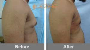 Breast Reduction Before After Photos-min