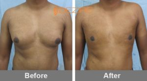 ganesh bhambakar Gynecomastia Exercise Before After-min