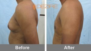 ganesh bhambakar Male Breast Reduction Before After-min