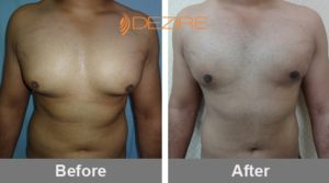 ganesh sonavane Average Cost Of Gynecomastia Surgery-min