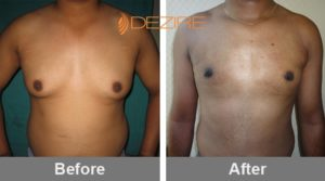 Gyno Surgery Before After In Pune