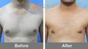 harshal patil Gynaecomastia Surgery In Bangalore-min