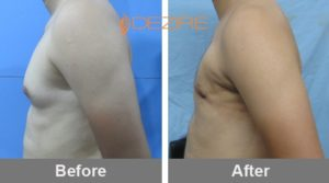harshal patil Gynecomastia Treatment Cost In India-min