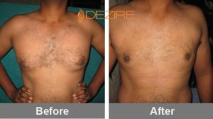 hivendra Male Breast Surgery Cost In Delhi-min