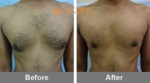 jitendra chauhan Gynecomastia Surgery Price In India-min