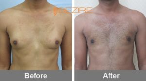 kiran Best Doctor For Gynecomastia In India-min