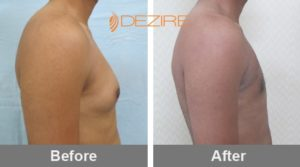 Best Gynecomastia Surgeon In Bangalore-min