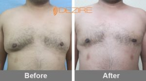 m das Male Breast Reduction In Bangalore-min