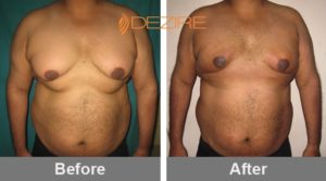 manoj sharma Gynecomastia Surgery Before And After-min