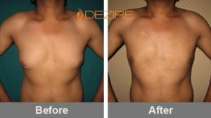 monty Gynaecomastia Treatment In Bangalore-min