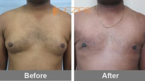 mukesh mishra Male Breast Reduction Cost In Delhi-min