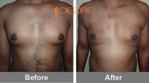 Male Breast Reduction Surgery Cost-min