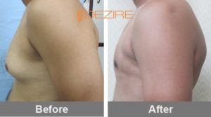 prakash vaser Gynecomastia Surgery Before After-min