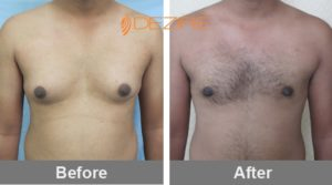 Gynecomastia Liposuction Cost-min