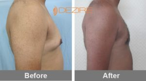 prashant vaser Gynecomastia Surgery Results Before After-min