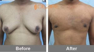 ravikant verma Male Breast Reduction Before And After-min