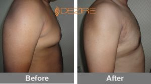 sandeep sawant Coolsculpting Gynecomastia Before And After-min