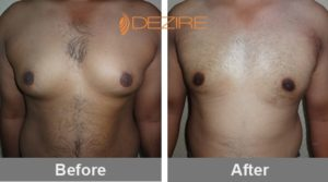 sandeep sawant Liposuction Breast Reduction Before And After-min