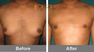 santosh chaurasia Male Chest Fat Reduction Surgery Cost-min