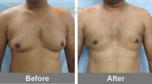 shamukhanand bargandy Male Breast Liposuction Before And After-min