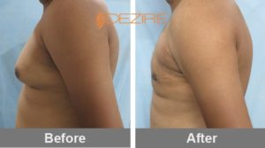 shamukhanand bargandy Mens Chest Liposuction Before And After-min
