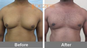 sheju Breast Reduction Surgery Before And After-min