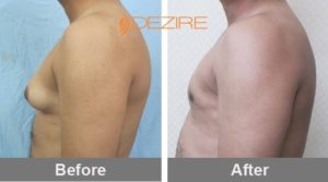 shrikant wagh unilateral African American Liposuction Before And After-min