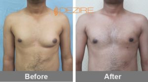 shrikant wagh unilateral Breast Reduction Surgery Before And After Images-min