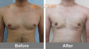 subhdeep chakraborthy Breast Reduction And Liposuction Before And After-min