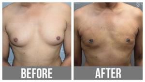 Breast Reduction Male Gynecomastia