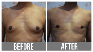 Male Breast Reduction Before And After In Pune